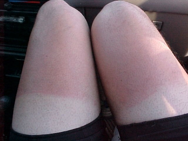 bad sunburn on the legs