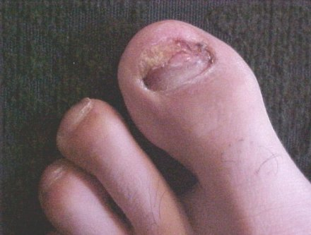 After the toe nail was pulled